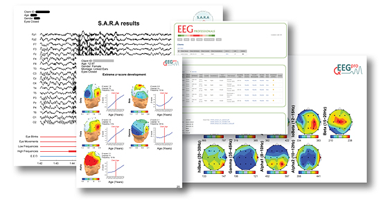 qEEG-Pro Offers Cutting Edge qEEG Brain Mapping Neurofeedback