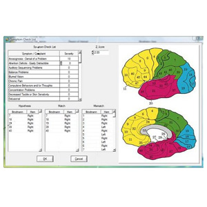 19Ch 3-D LORETA Z-Score NFT for NeuroGuide
