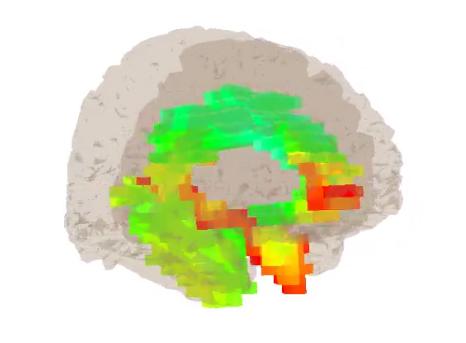 BrainAvatar Software